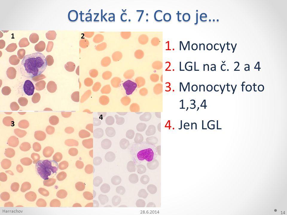 Otázka č. 7: Co to je… 28.6.2014 14 1.Monocyty 2.LGL na č. 2 a 4 3.Monocyty foto 1,3,4 4.Jen LGL Harrachov 12 3 4