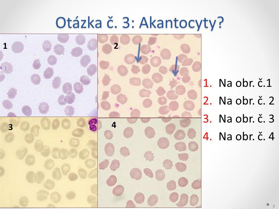 Otázka č. 3: Akantocyty? 28.6.2014 7 Harrachov 1.Na obr. č.1 2.Na obr. č. 2 3.Na obr. č. 3 4.Na obr. č. 4 12 3 4
