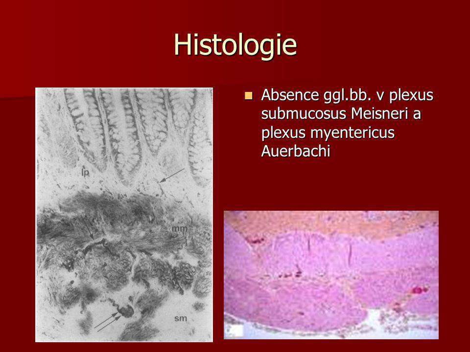 Histologie  Absence ggl.bb. v plexus submucosus Meisneri a plexus myentericus Auerbachi