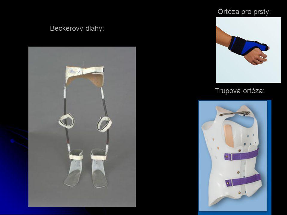 Ortéza pro prsty: Trupová ortéza: Beckerovy dlahy: