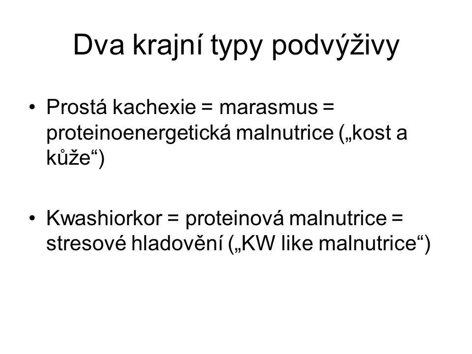 """Dva krajní typy podvýživy •Prostá kachexie = marasmus = proteinoenergetická malnutrice (""""kost a kůže"""") •Kwashiorkor = proteinová malnutrice = stresové"""