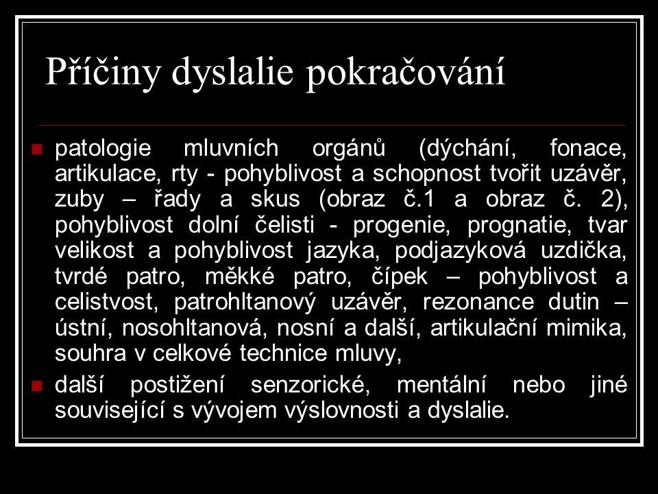 Příčiny dyslalie pokračování  patologie mluvních orgánů (dýchání, fonace, artikulace, rty - pohyblivost a schopnost tvořit uzávěr, zuby – řady a skus