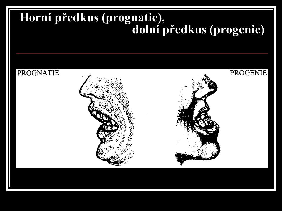 Horní předkus (prognatie), dolní předkus (progenie)