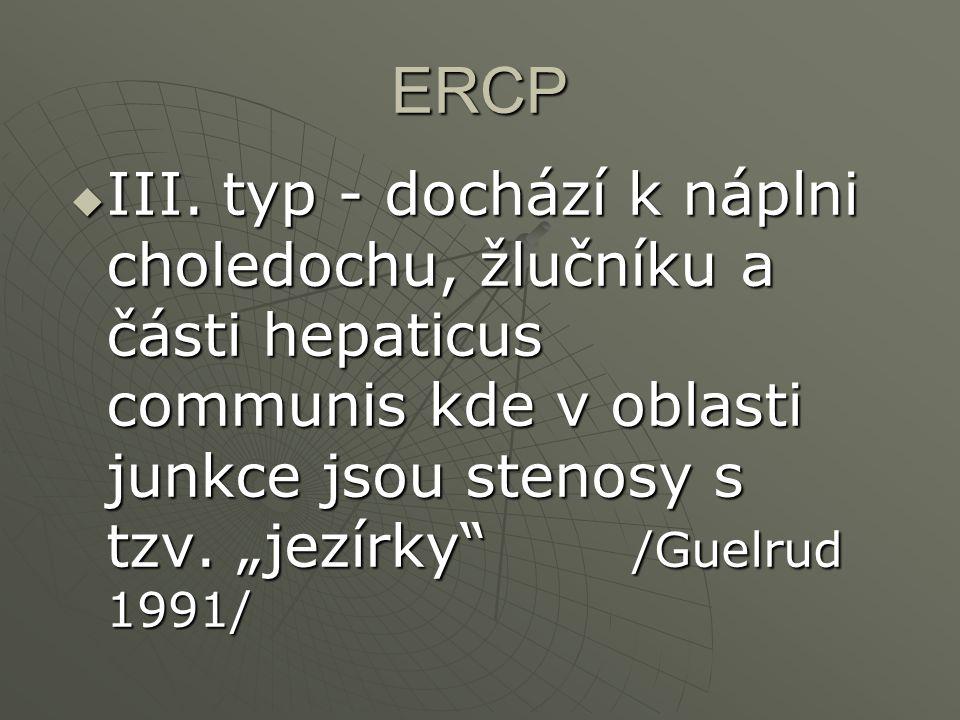 """ERCP  III. typ - dochází k náplni choledochu, žlučníku a části hepaticus communis kde v oblasti junkce jsou stenosy s tzv. """"jezírky"""" /Guelrud 1991/"""