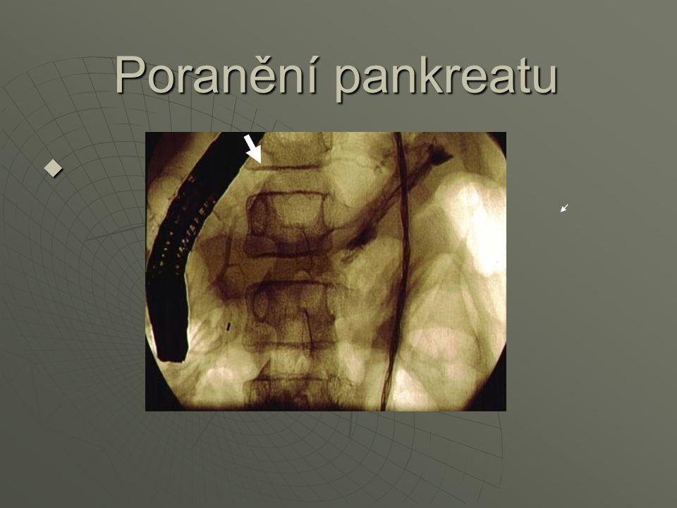 Poranění pankreatu 