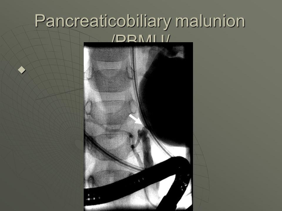 Pancreaticobiliary malunion /PBMU/ 