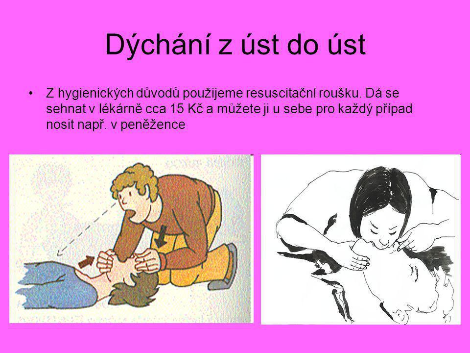Dýchání z úst do úst •Z hygienických důvodů použijeme resuscitační roušku. Dá se sehnat v lékárně cca 15 Kč a můžete ji u sebe pro každý případ nosit
