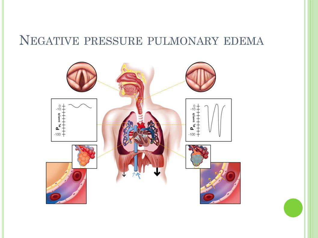 N EGATIVE PRESSURE PULMONARY EDEMA
