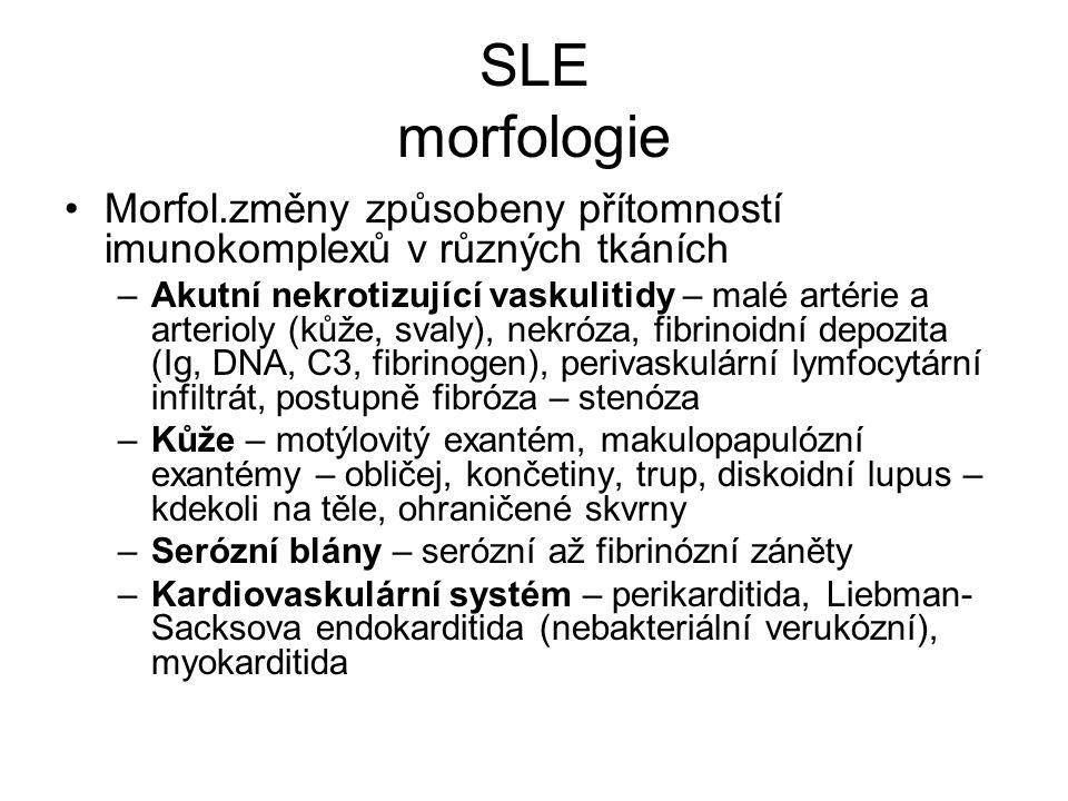 SLE morfologie •Morfol.změny způsobeny přítomností imunokomplexů v různých tkáních –Akutní nekrotizující vaskulitidy – malé artérie a arterioly (kůže,