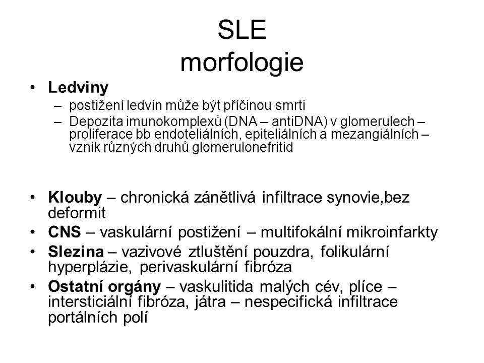 SLE morfologie •Ledviny –postižení ledvin může být příčinou smrti –Depozita imunokomplexů (DNA – antiDNA) v glomerulech – proliferace bb endoteliálníc