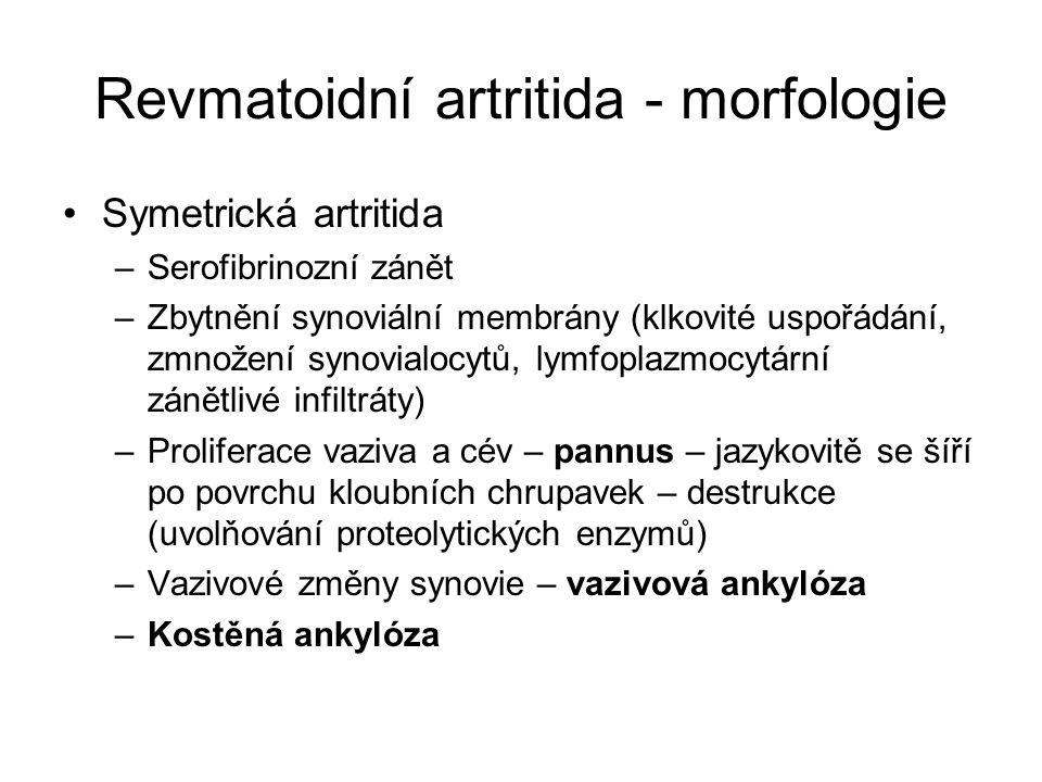 Revmatoidní artritida - morfologie •Symetrická artritida –Serofibrinozní zánět –Zbytnění synoviální membrány (klkovité uspořádání, zmnožení synovialoc