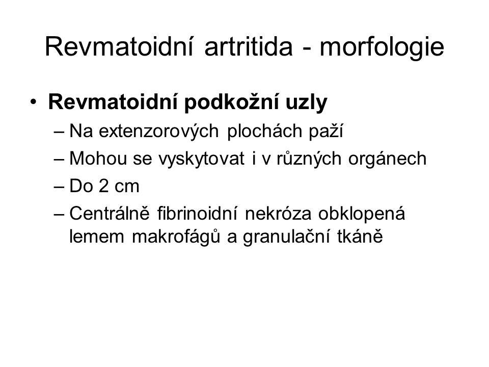 Revmatoidní artritida - morfologie •Revmatoidní podkožní uzly –Na extenzorových plochách paží –Mohou se vyskytovat i v různých orgánech –Do 2 cm –Cent