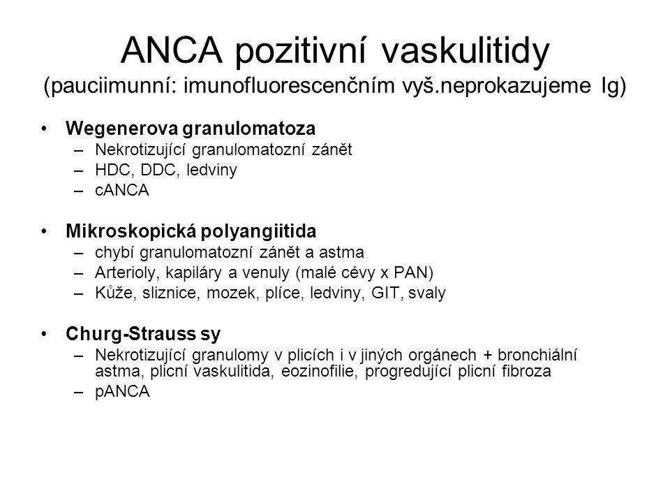 ANCA pozitivní vaskulitidy (pauciimunní: imunofluorescenčním vyš.neprokazujeme Ig) •Wegenerova granulomatoza –Nekrotizující granulomatozní zánět –HDC,