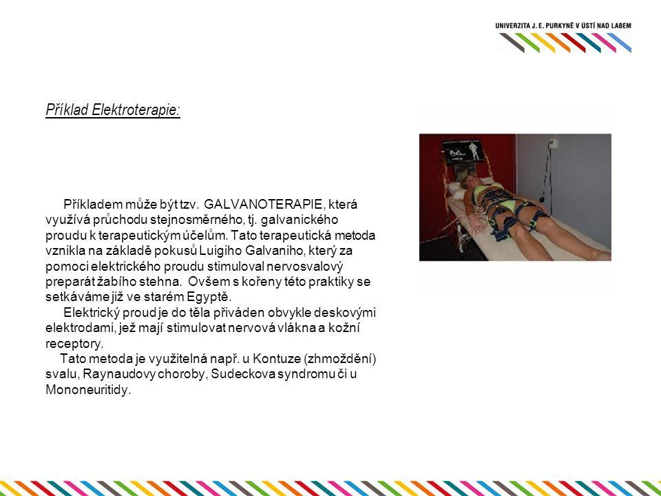 Příklad Elektroterapie: Příkladem může být tzv. GALVANOTERAPIE, která využívá průchodu stejnosměrného, tj. galvanického proudu k terapeutickým účelům.