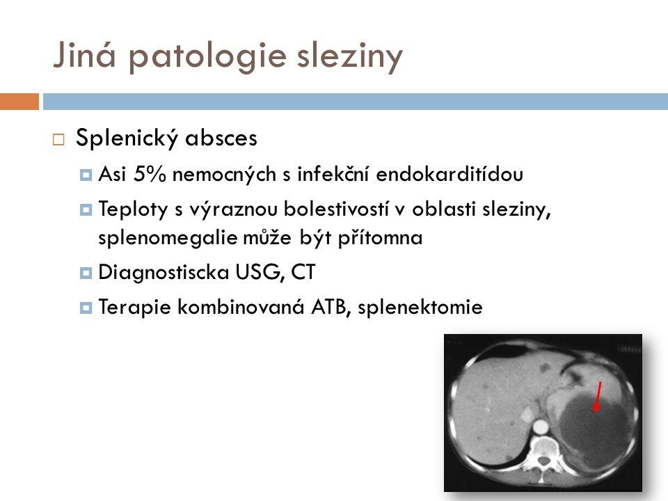 Jiná patologie sleziny  Splenický absces  Asi 5% nemocných s infekční endokarditídou  Teploty s výraznou bolestivostí v oblasti sleziny, splenomega