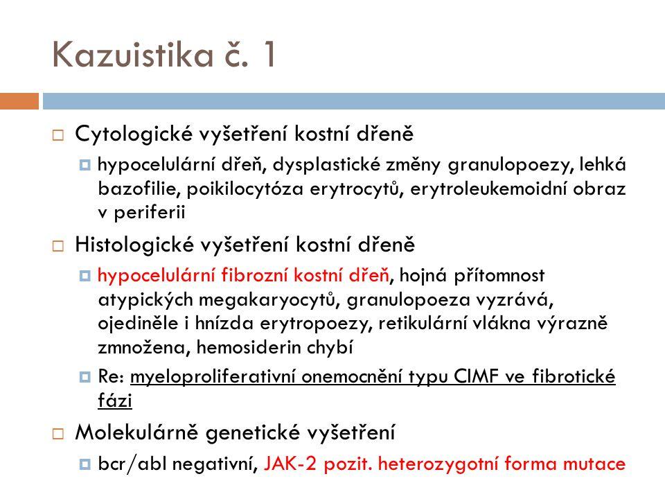 Kazuistika č. 1  Cytologické vyšetření kostní dřeně  hypocelulární dřeň, dysplastické změny granulopoezy, lehká bazofilie, poikilocytóza erytrocytů,