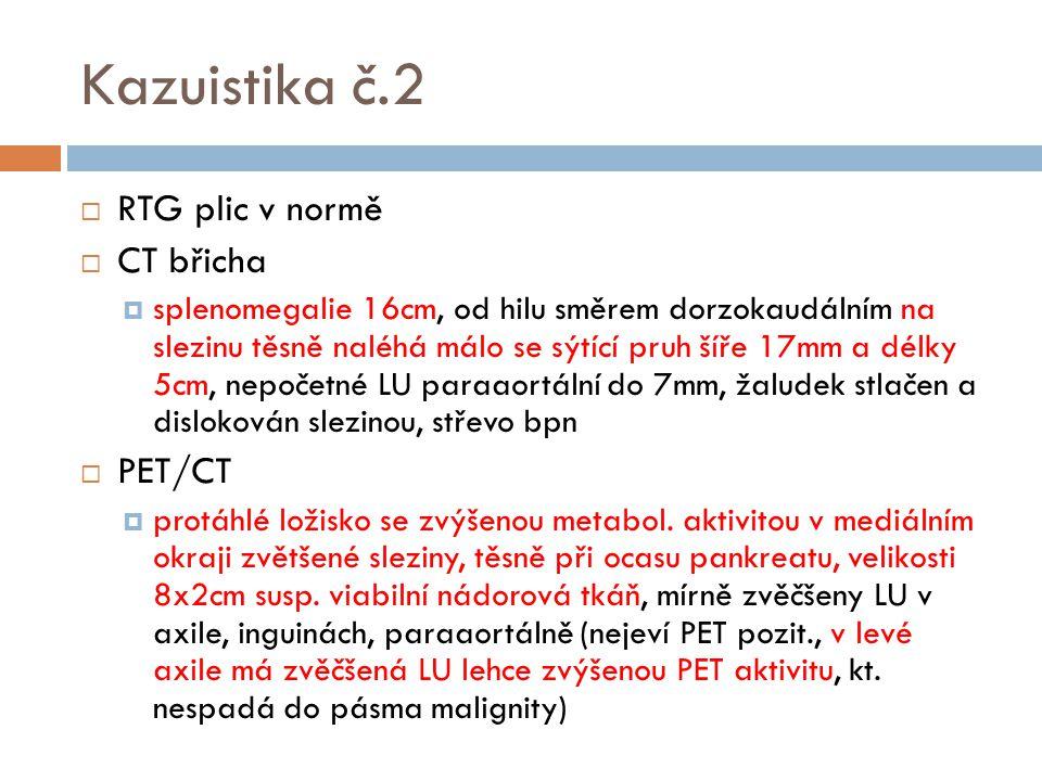Kazuistika č.2  RTG plic v normě  CT břicha  splenomegalie 16cm, od hilu směrem dorzokaudálním na slezinu těsně naléhá málo se sýtící pruh šíře 17m
