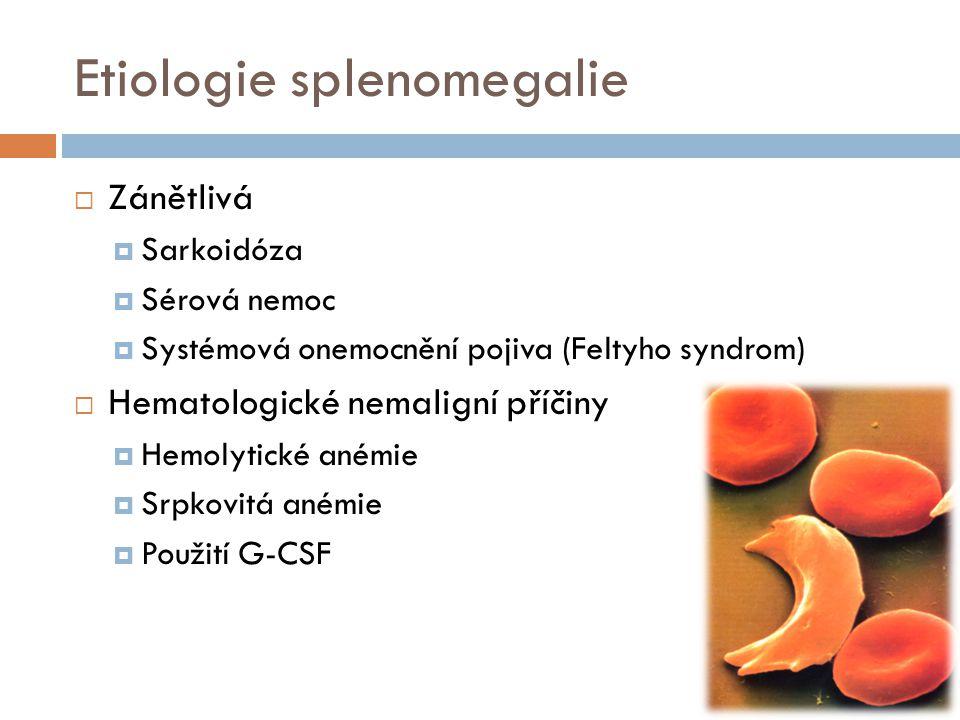 Etiologie splenomegalie  Zánětlivá  Sarkoidóza  Sérová nemoc  Systémová onemocnění pojiva (Feltyho syndrom)  Hematologické nemaligní příčiny  He