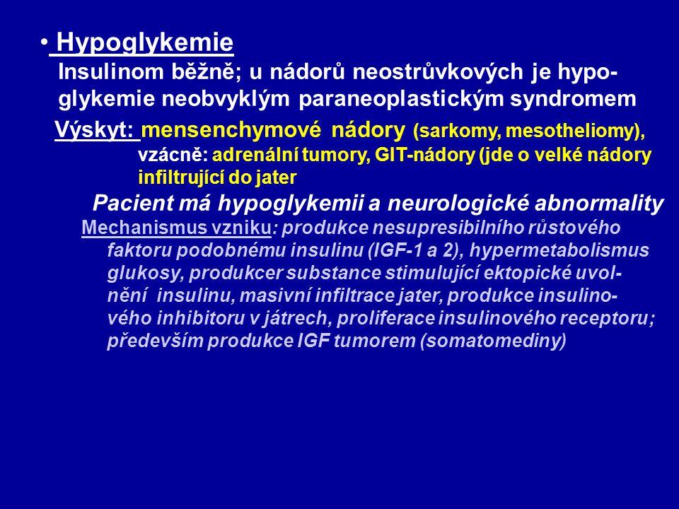 • Hypoglykemie Insulinom běžně; u nádorů neostrůvkových je hypo- glykemie neobvyklým paraneoplastickým syndromem Výskyt: mensenchymové nádory (sarkomy