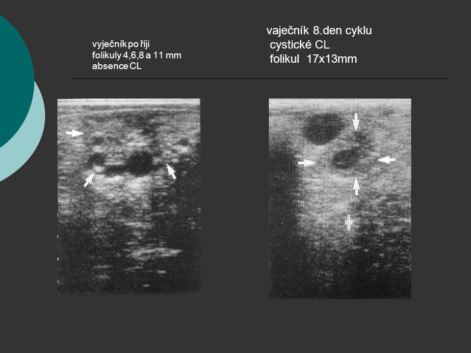 vyječník po říji folikuly 4,6,8 a 11 mm absence CL vaječník 8.den cyklu cystické CL folikul 17x13mm