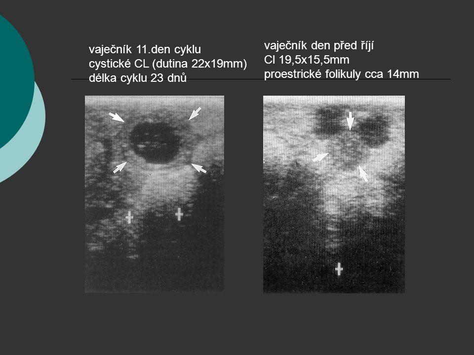 vaječník den před říjí Cl 19,5x15,5mm proestrické folikuly cca 14mm vaječník 11.den cyklu cystické CL (dutina 22x19mm) délka cyklu 23 dnů