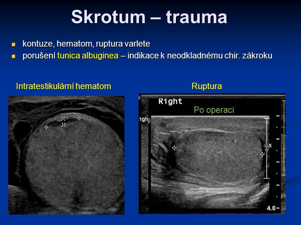 Skrotum – trauma  kontuze, hematom, ruptura varlete  porušení tunica albuginea – indikace k neodkladnému chir. zákroku Intratestikulární hematom Rup