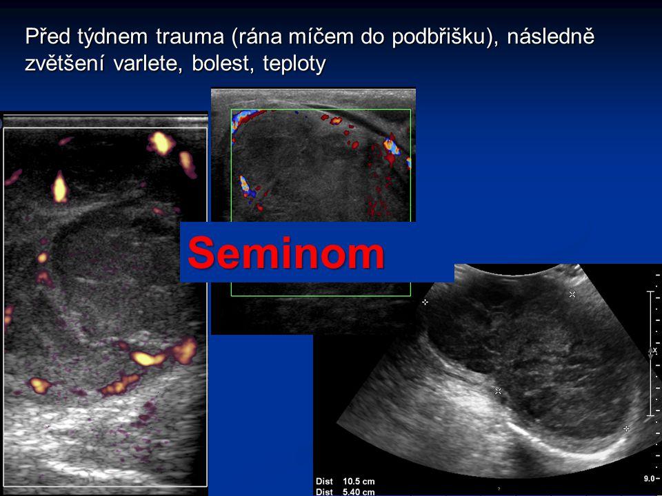 Před týdnem trauma (rána míčem do podbřišku), následně zvětšení varlete, bolest, teploty Seminom