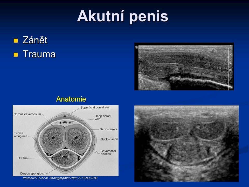 Akutní penis  Zánět  Trauma Pretorius E S et al. Radiographics 2001;21:S283-S298 Anatomie
