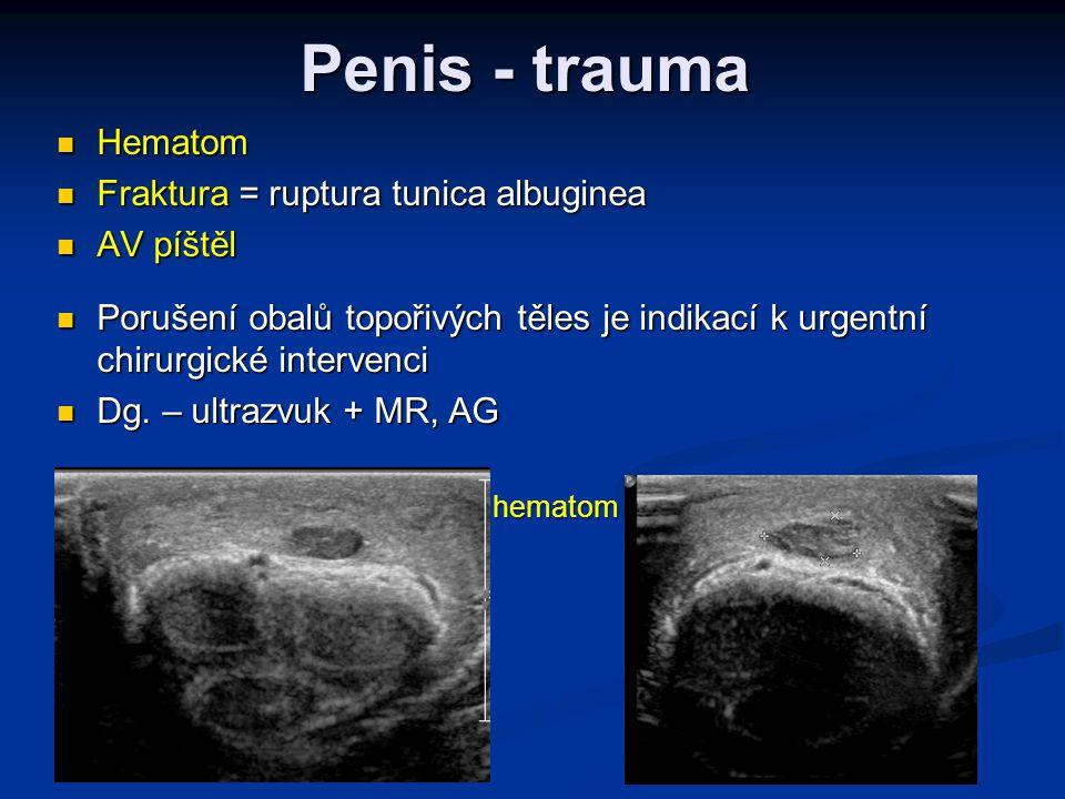 Penis - trauma  Hematom  Fraktura = ruptura tunica albuginea  AV píštěl  Porušení obalů topořivých těles je indikací k urgentní chirurgické interv