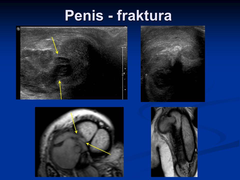 Penis - fraktura