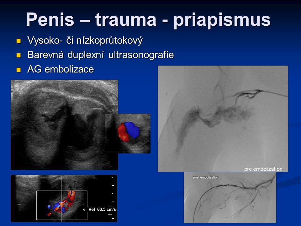 Penis – trauma - priapismus  Vysoko- či nízkoprůtokový  Barevná duplexní ultrasonografie  AG embolizace