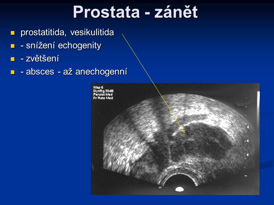 Prostata - zánět  prostatitida, vesikulitida  - snížení echogenity  - zvětšení  - absces - až anechogenní