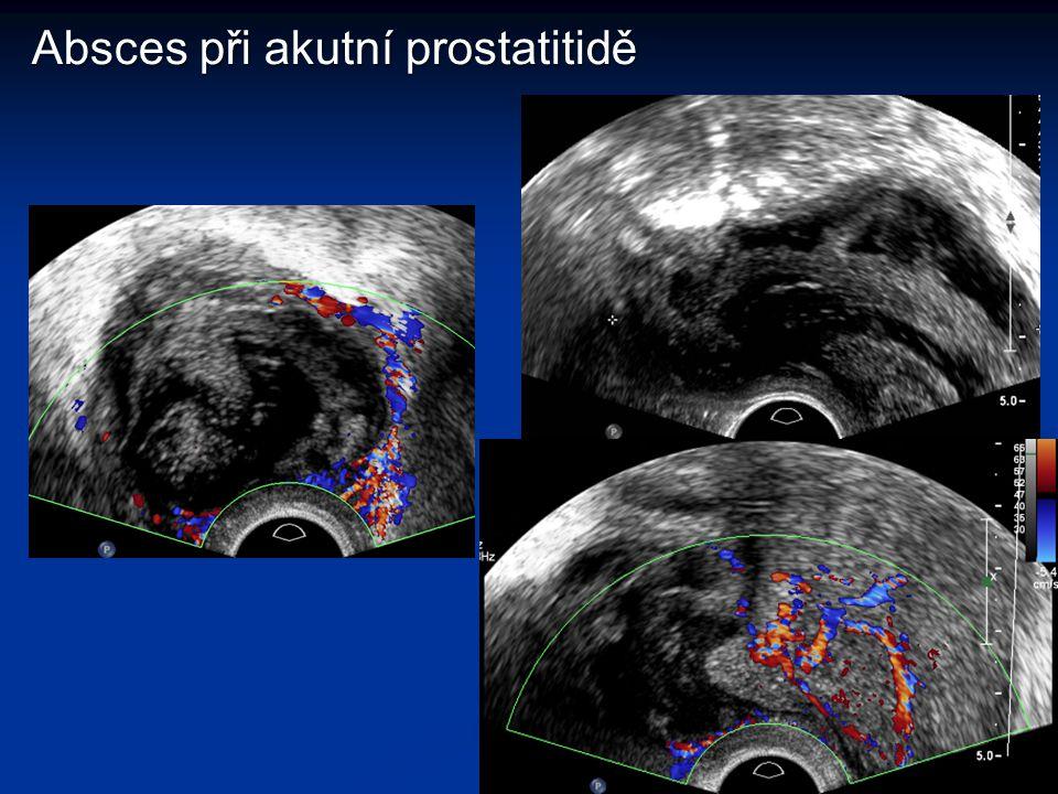 Absces při akutní prostatitidě
