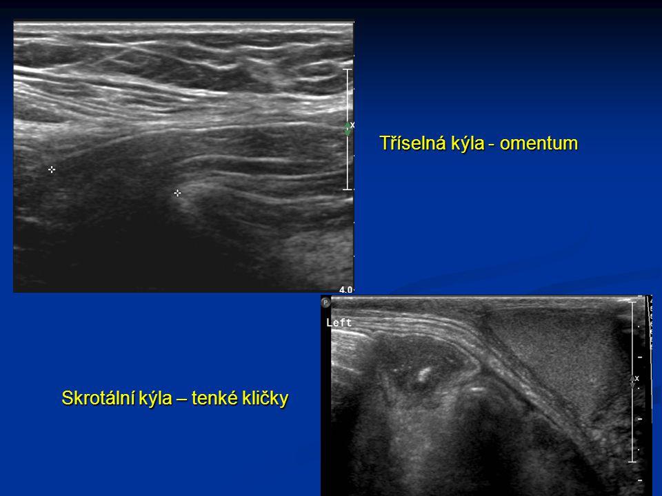 Tříselná kýla - omentum Skrotální kýla – tenké kličky