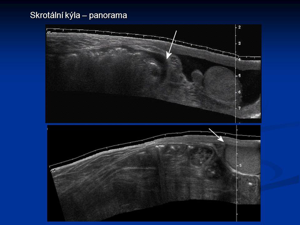 Akutní skrotum  záněty  torze varlete  torze přívěsků  trauma  uskřinutí skrotální kýly