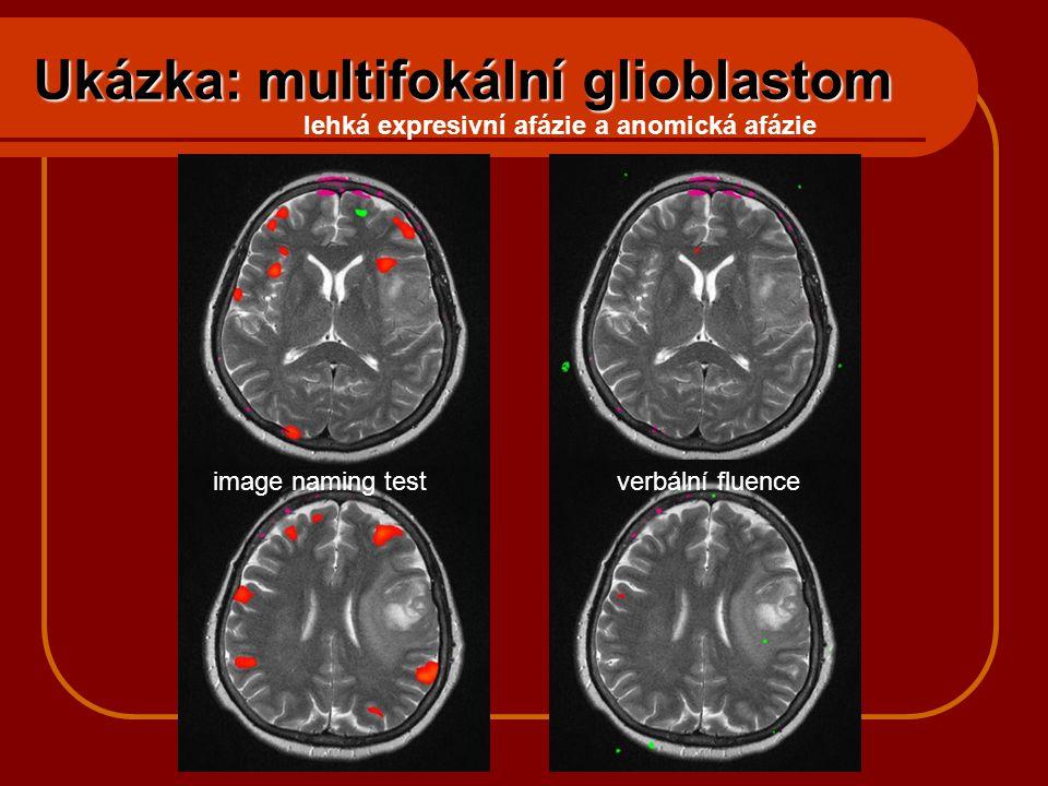 Ukázka: multifokální glioblastom image naming testverbální fluence lehká expresivní afázie a anomická afázie