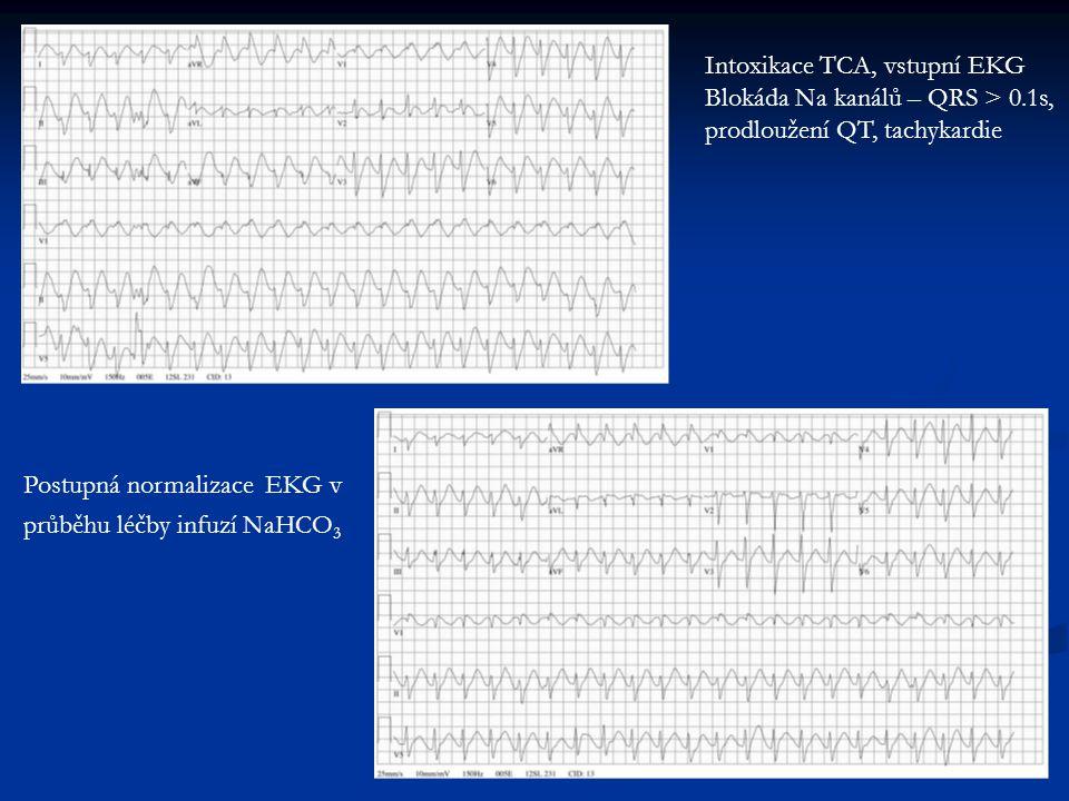Intoxikace TCA, vstupní EKG Blokáda Na kanálů – QRS > 0.1s, prodloužení QT, tachykardie Postupná normalizace EKG v průběhu léčby infuzí NaHCO 3