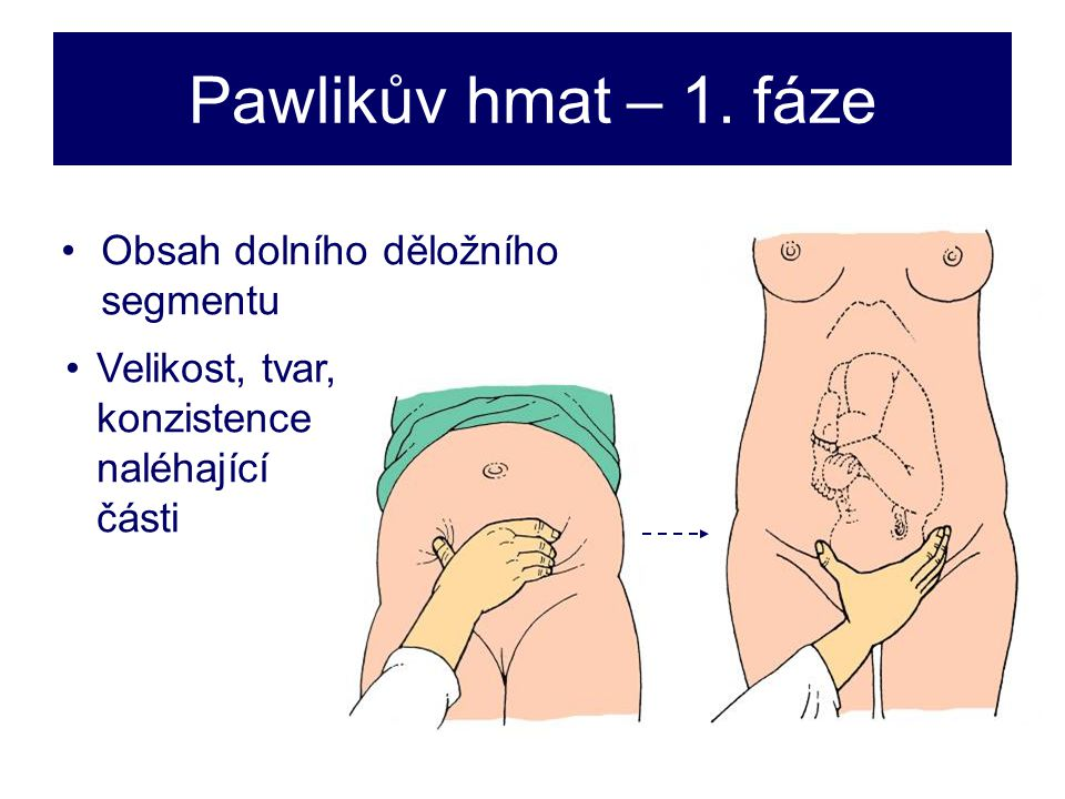 Pawlikův hmat – 1.