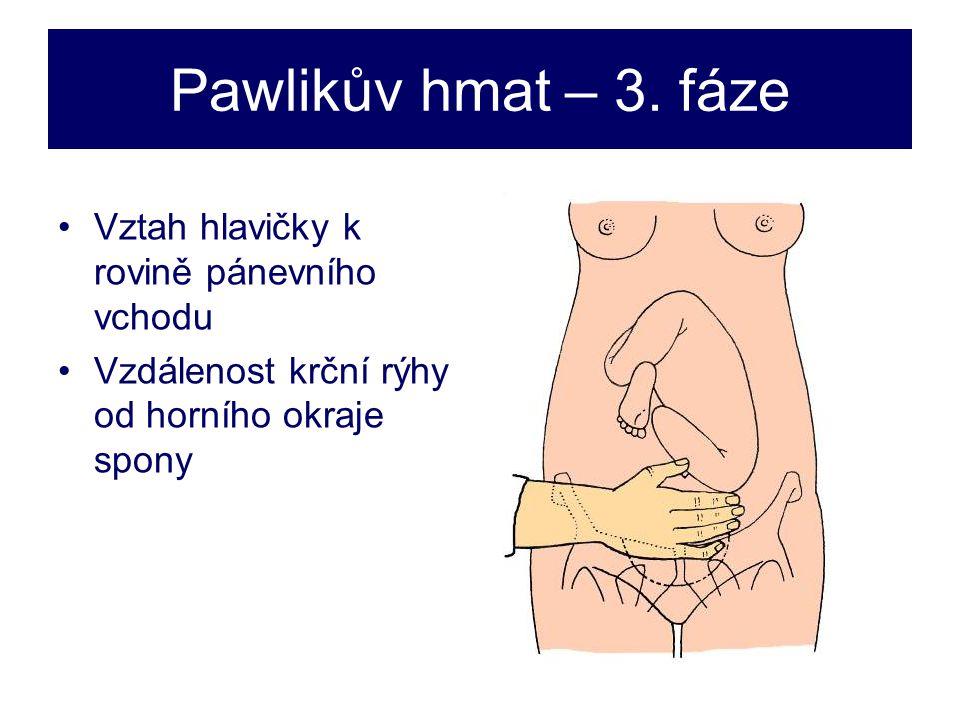 Pawlikův hmat – 3.