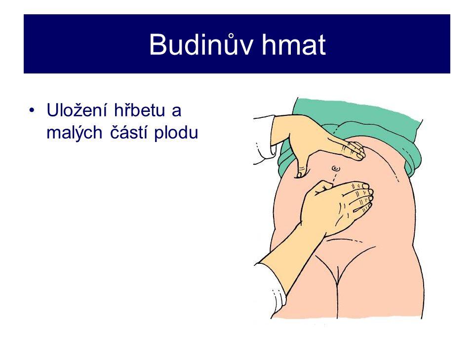 Budinův hmat •Uložení hřbetu a malých částí plodu
