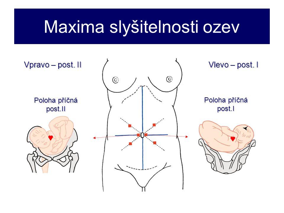 Maxima slyšitelnosti ozev Poloha příčná post.I Vpravo – post.