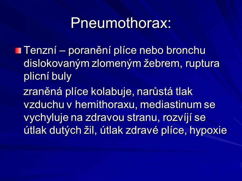 Pneumothorax: Tenzní – poranění plíce nebo bronchu dislokovaným zlomeným žebrem, ruptura plicní buly zraněná plíce kolabuje, narůstá tlak vzduchu v he