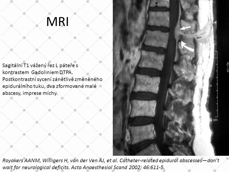 MRI Sagitální T1 vážený řez L páteře s kontrastem Gadoliniem DTPA. Postkontrastní sycení zánětlivě změněného epidurálního tuku, dva zformované malé ab