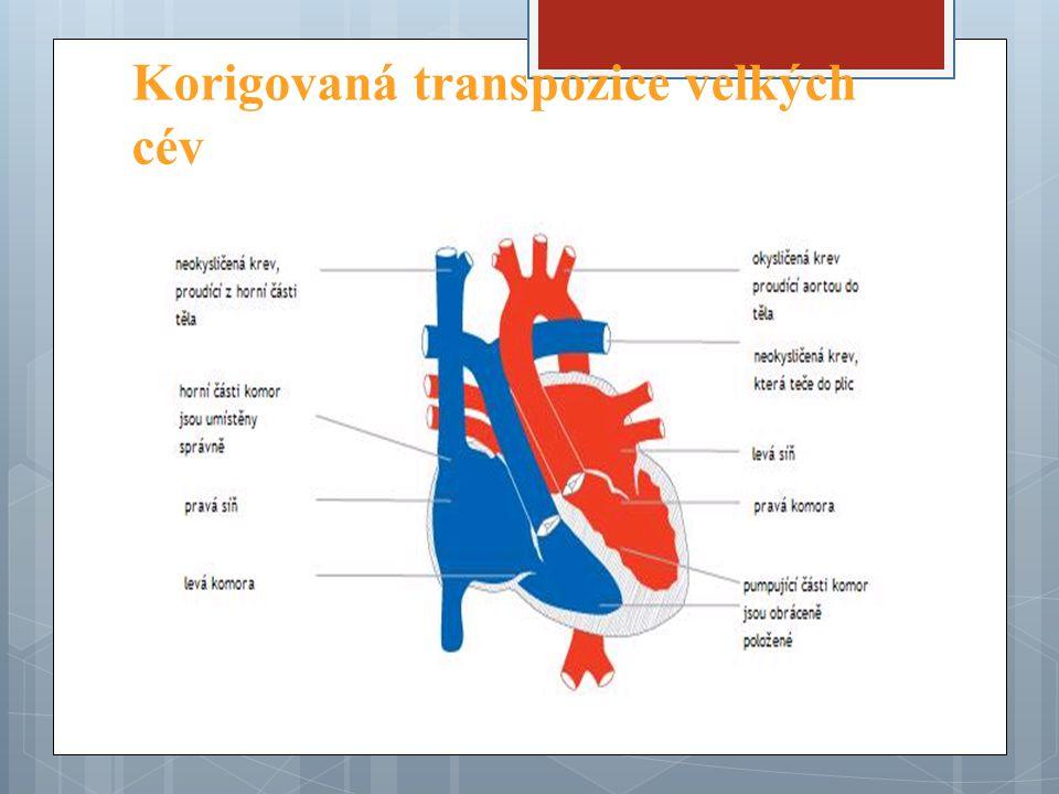 Korigovaná transpozice velkých cév
