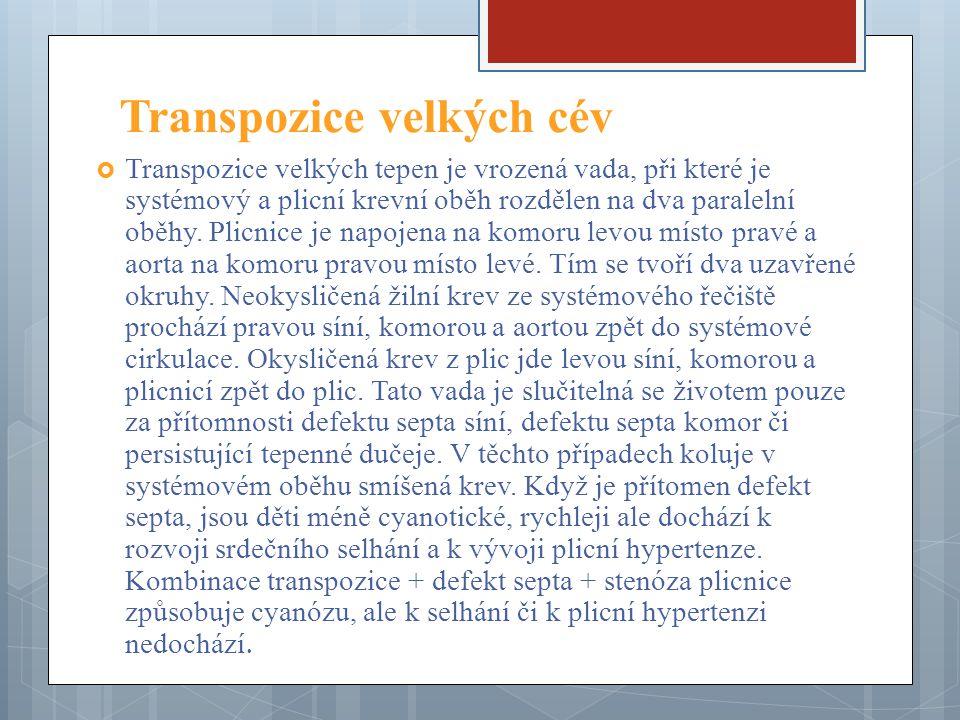 Transpozice velkých cév  Transpozice velkých tepen je vrozená vada, při které je systémový a plicní krevní oběh rozdělen na dva paralelní oběhy.