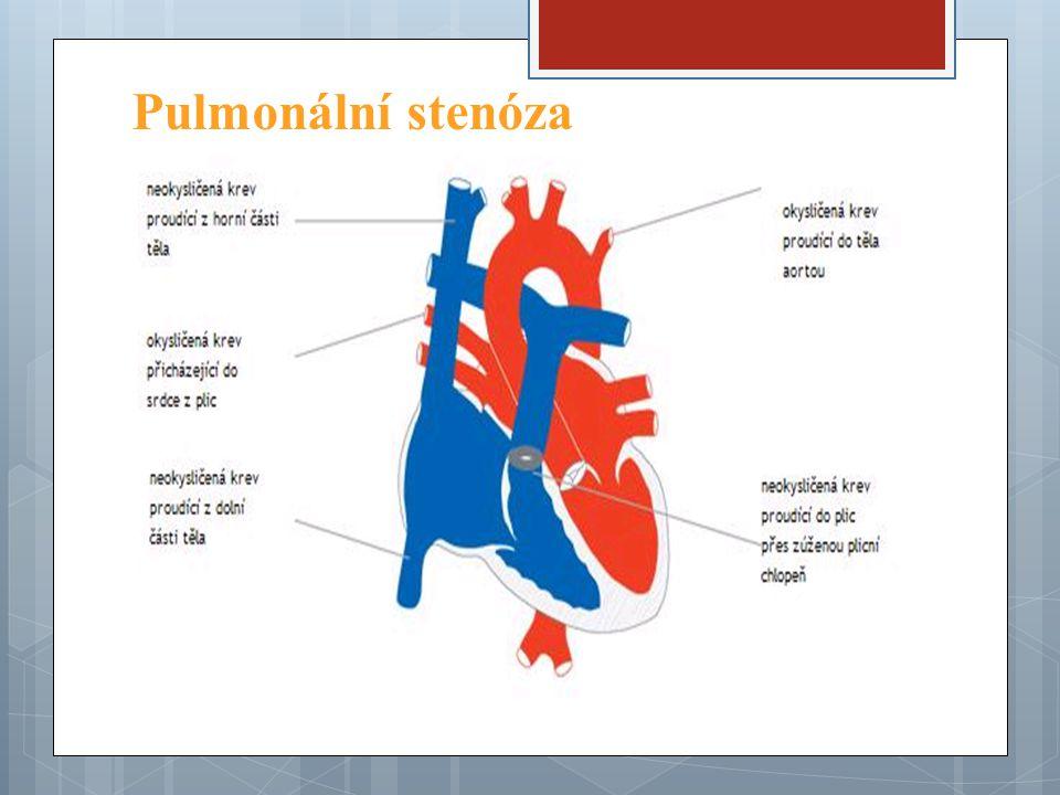 Pulmonální stenóza