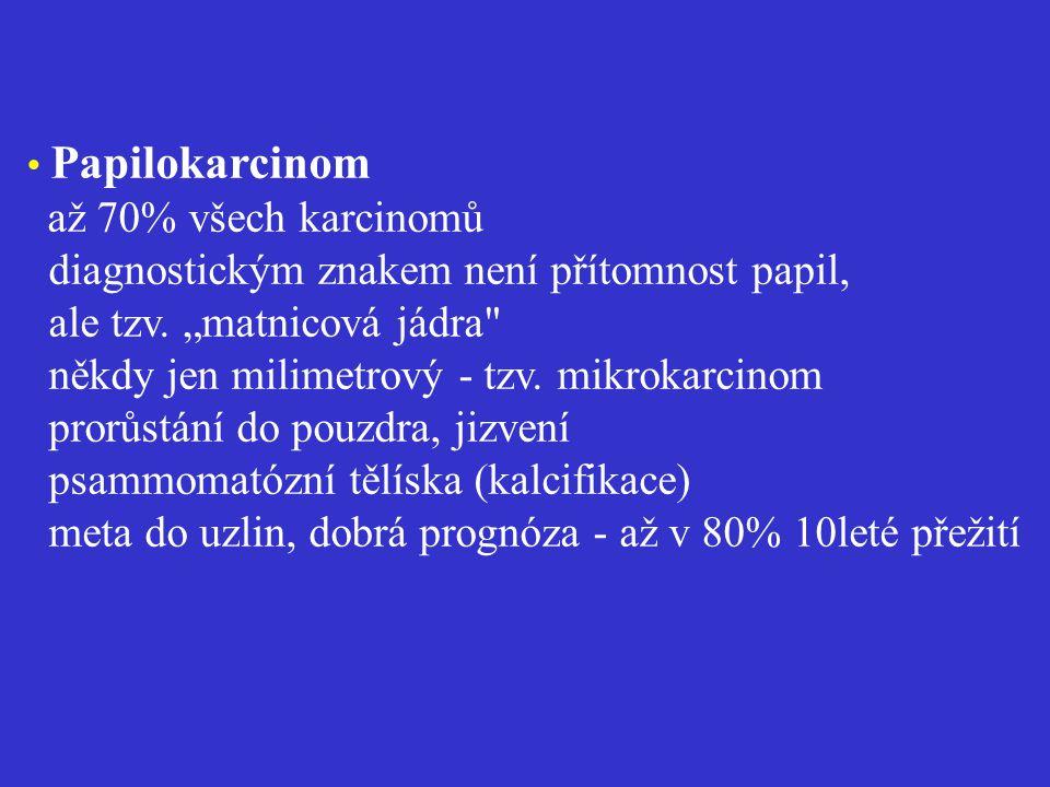 • Papilokarcinom až 70% všech karcinomů diagnostickým znakem není přítomnost papil, ale tzv.