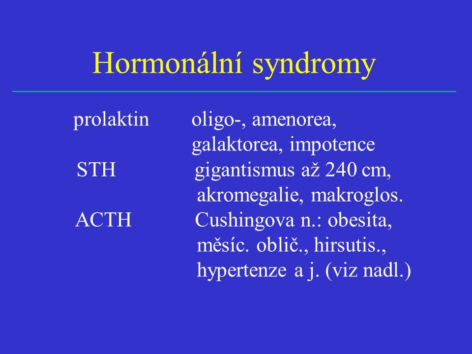 Hormonální syndromy prolaktin oligo-, amenorea, galaktorea, impotence STH gigantismus až 240 cm, akromegalie, makroglos. ACTH Cushingova n.: obesita,