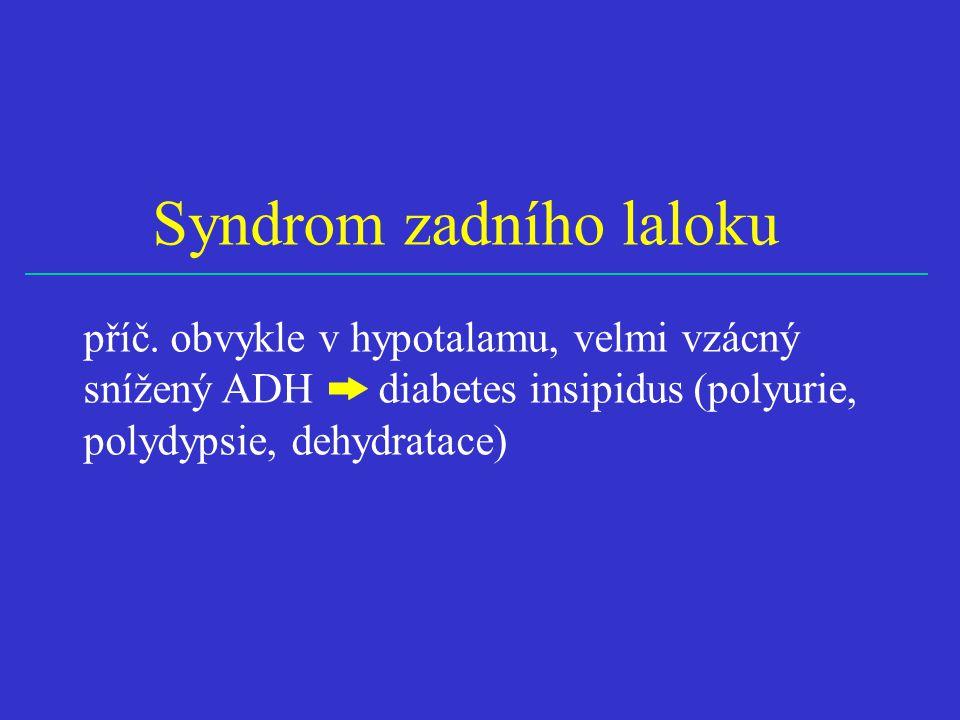 Syndrom zadního laloku příč. obvykle v hypotalamu, velmi vzácný snížený ADH diabetes insipidus (polyurie, polydypsie, dehydratace)