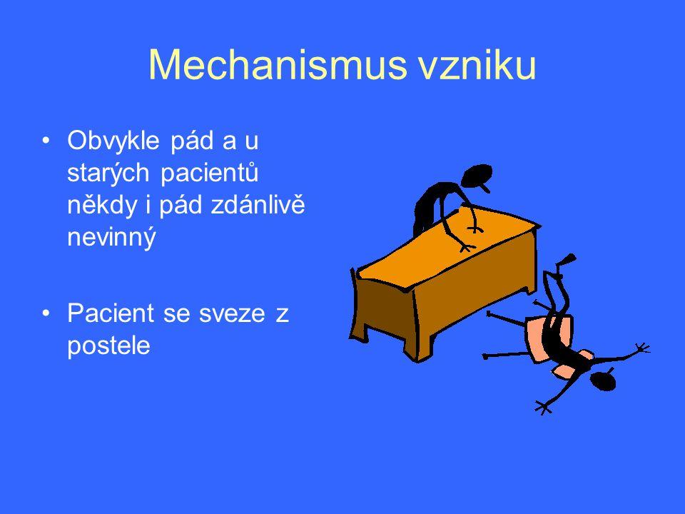 Typická trias •Bolest •Zevní rotace končetiny •Zkrácení končetiny